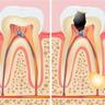 endodoncia klinika uralde inicio