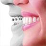 ortodoncia klinika uralde inicio