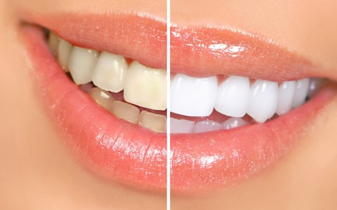 ¿ Qué factores afectan el color de los dientes?